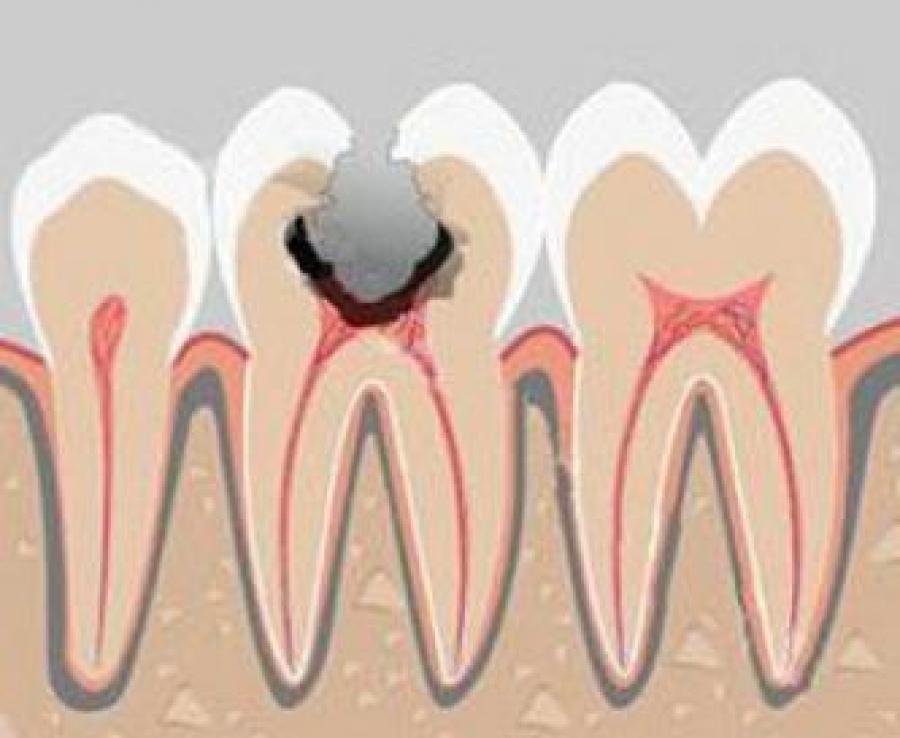 Отбеливающие полоски crest 3 d white для зубов купить